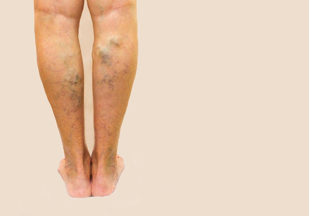 Maladie variqueuse: elle peut être traitée efficacement avec des médicaments! (x)