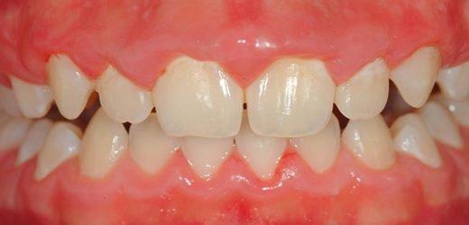 Réduire la plaque sur les dents avec 6 solutions naturelles